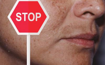STOP effetto leopardo sul tuo viso!